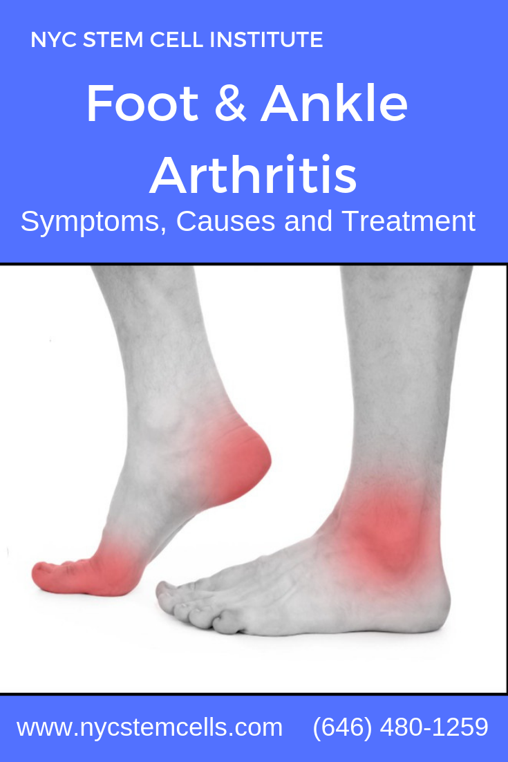 The feet and ankles can be affected by several types of