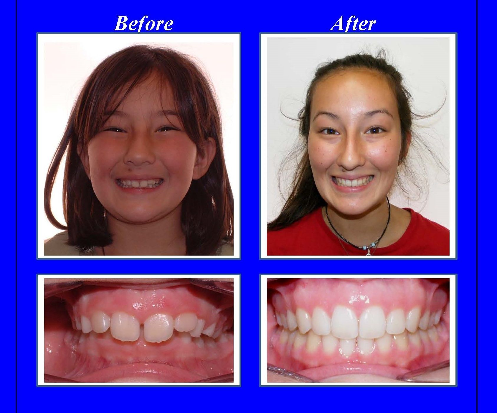 This patient had a severe overbite. We used Invisalign ...