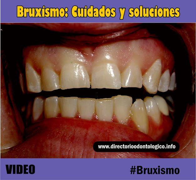 Bruxismo Cuidados Y Soluciones Dentist Dental Teeth