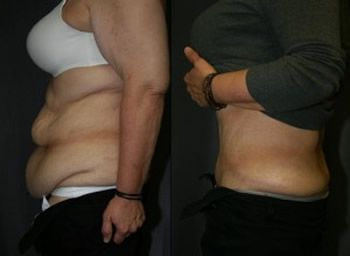 Tips To How Tighten Up Loose Skin After Weight Loss Before And