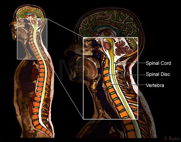 Color MRI Cervical Spine Anatomy | back pain | Pinterest | Anatomy