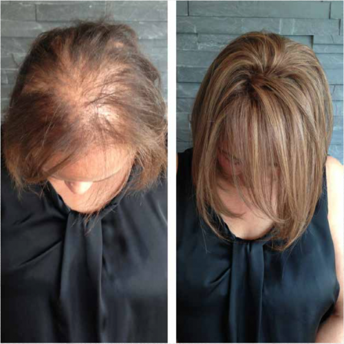 42++ Hair pieces for womens thinning hair inspirations