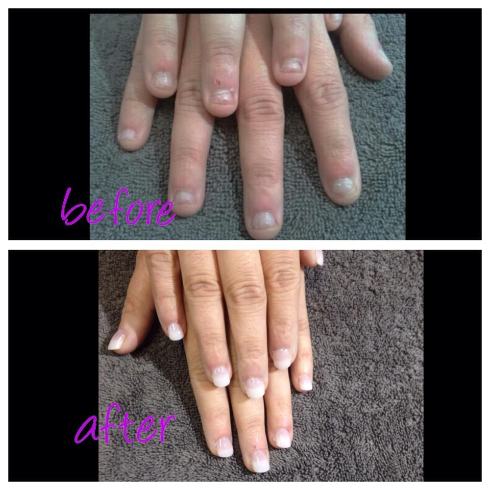 A Before And After Of A Full Set Of Tips With Acrylic On Severely Bitten Nails My Nails Wide Nails Manicure