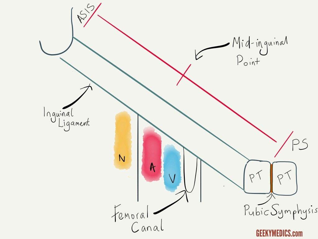 femoral hernia anatomy - photo #24