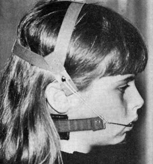Orthodontic Headgear Hell circa 1970 - Oh yeah..this and spacers between *all* your teeth so they could fit full bands of metal around all your teeth..oy.