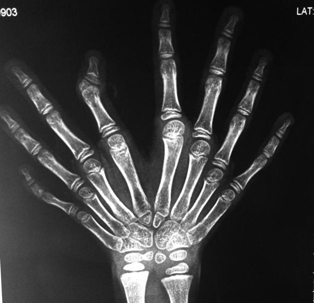 Ulnar Dimelia Ive Got X Ray Vision Pinterest Radiology