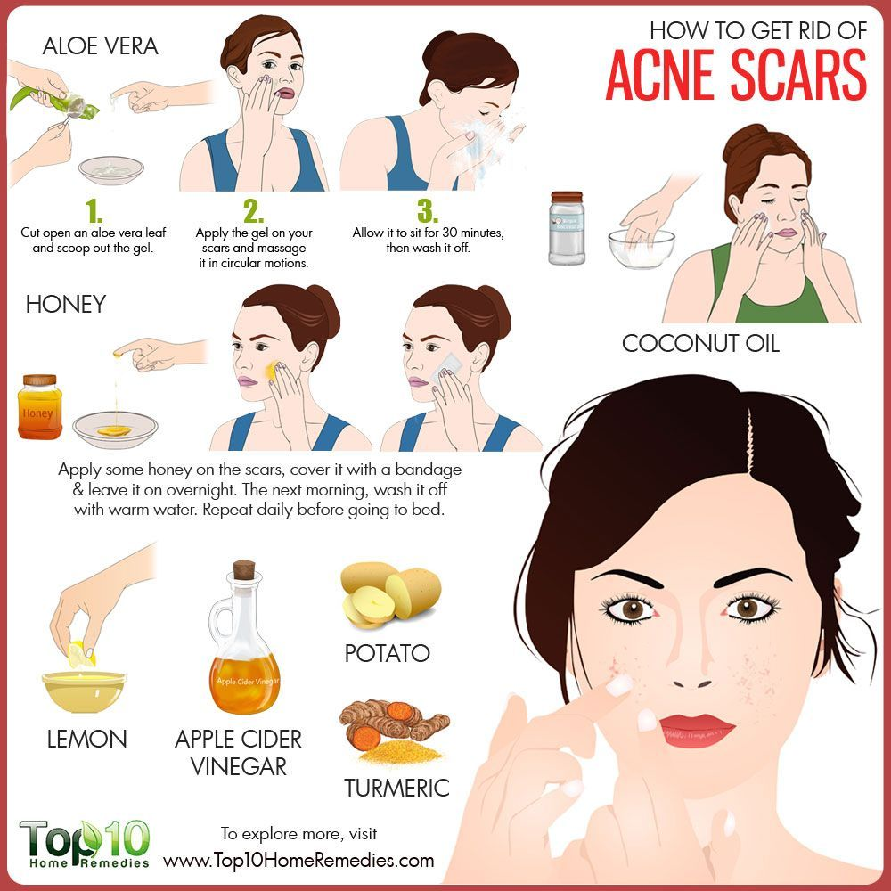 how to get rid of acne scars | natural acne skin care | pinterest