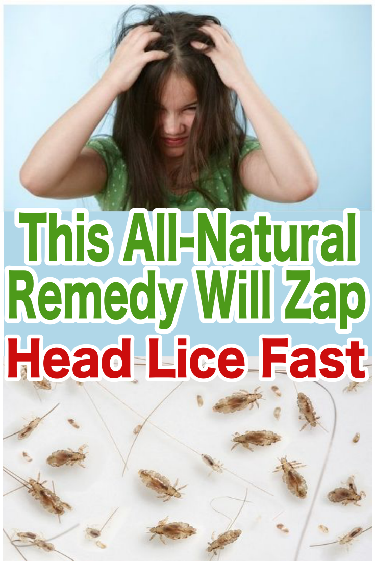 Natural Remedies For Lice-How To Get Rid of Head Lice ...
