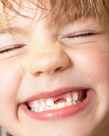 Child S Skull With Teeth Creepy But Fascinating Images Baby Teeth Tooth Fairy Loose Tooth