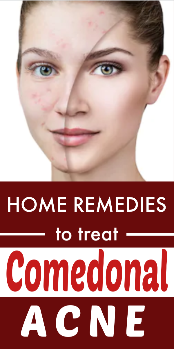 Home Remedies To Treat Comedonal Acne In 2020 Comedonal Acne Acne Care Acne