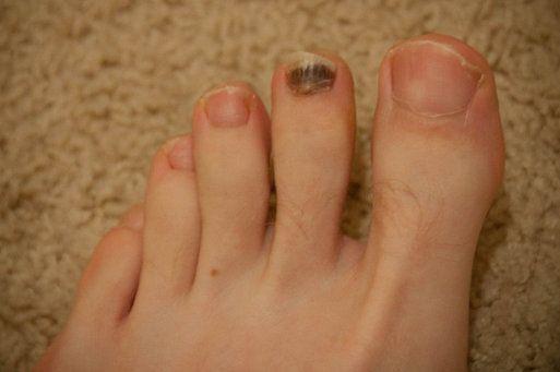 tipo de diabetes en la uña del pie ennegrecida