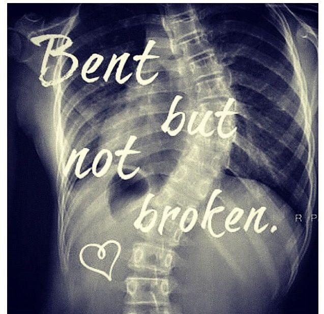 Inspirational Quotes Surgery: Die Besten 25+ Skoliose Chirurgie Ideen Auf Pinterest