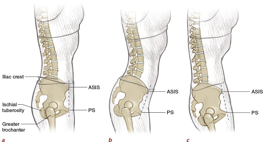 Figure 2.8 Bony landmarks and standing pelvic alignment (side view ...