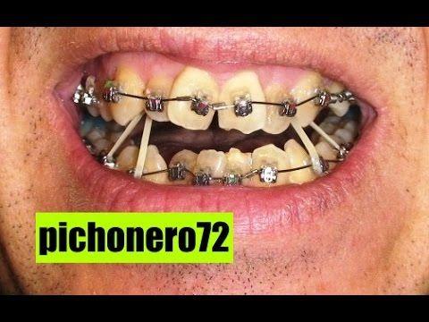 Elásticos Intermaxilares Youtube Ortodoncia Dientes Con Brackets Brackets Dentales