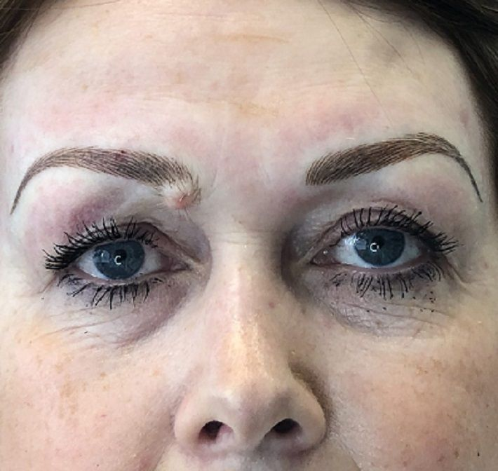 Semi-permanent brows for beauty marks and moles. Working ...