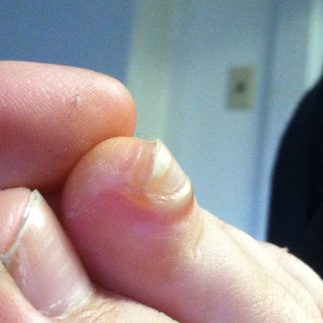 My Sweet Under Toe Nail Blister