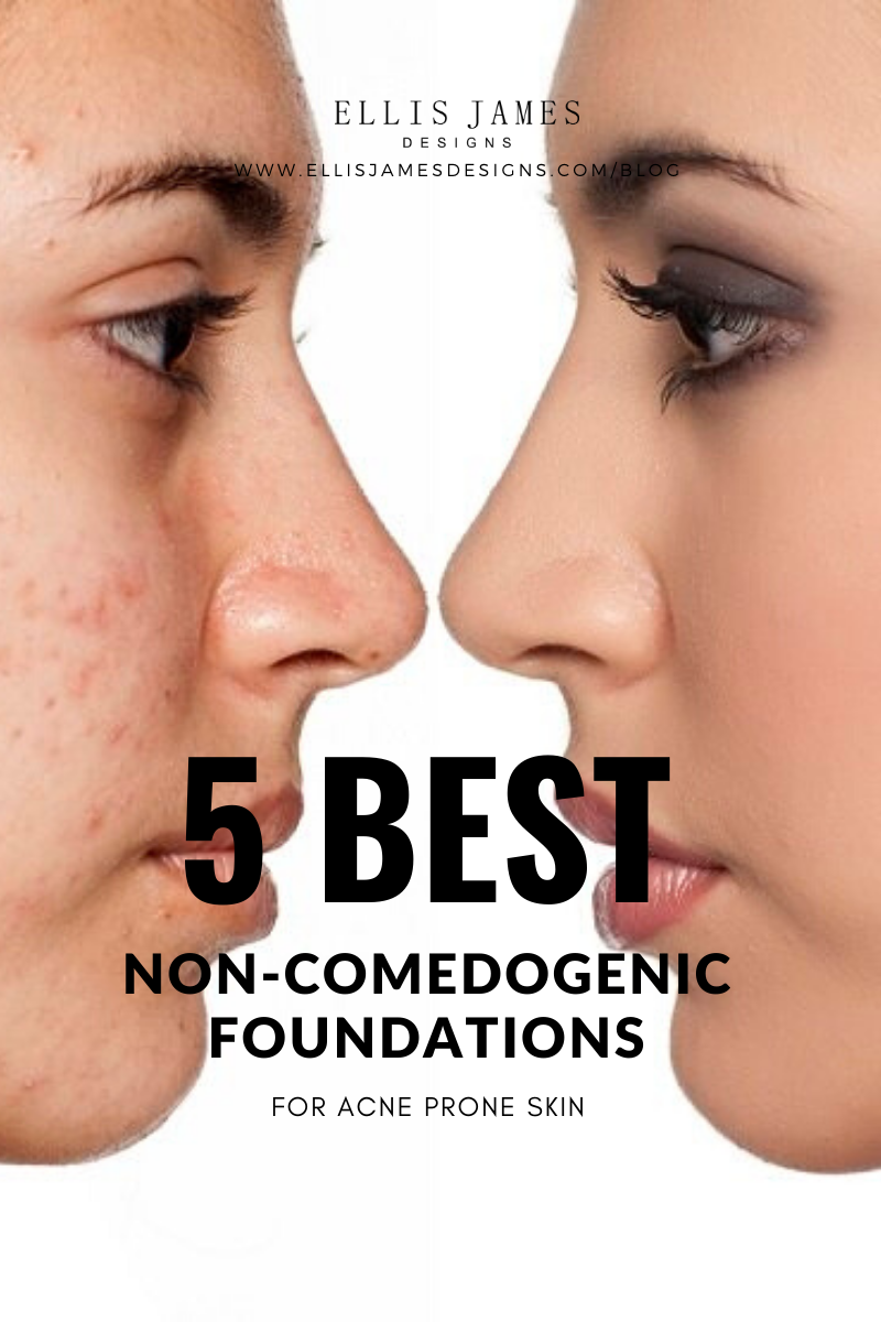 Best Foundation for Acne Prone Skin in