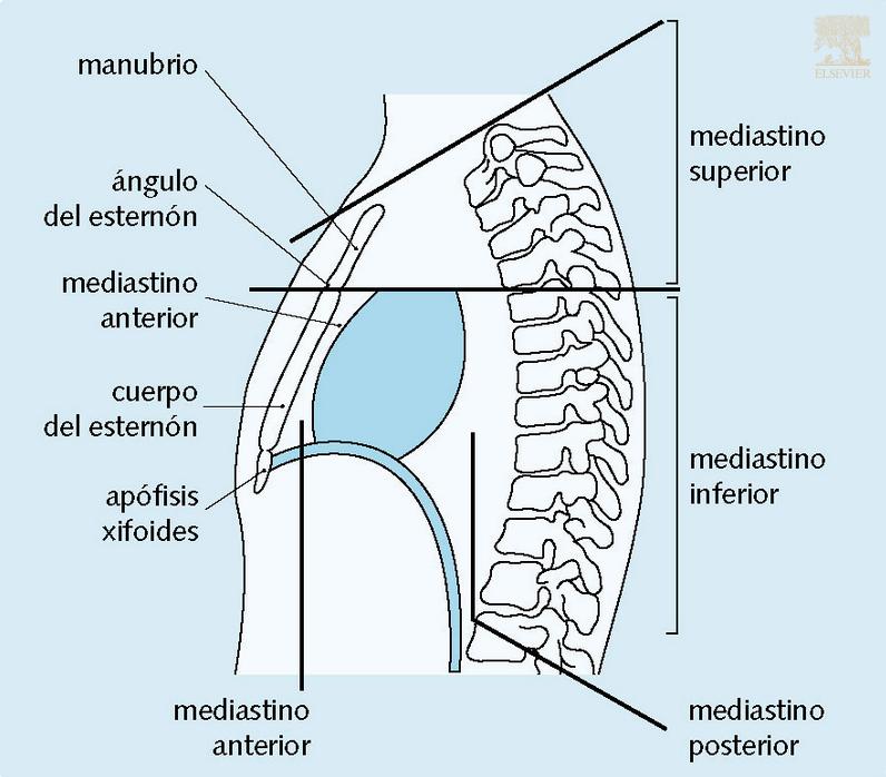 Subdivisiones del mediastino | #ClaveElsevier | Pinterest | Medicina ...