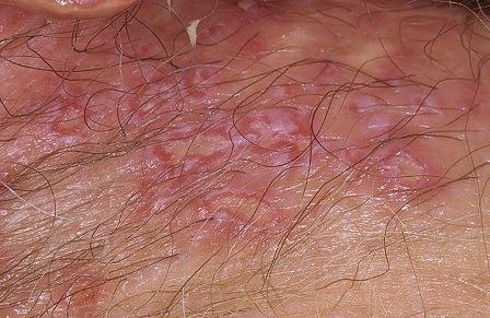male genital herpes pictures