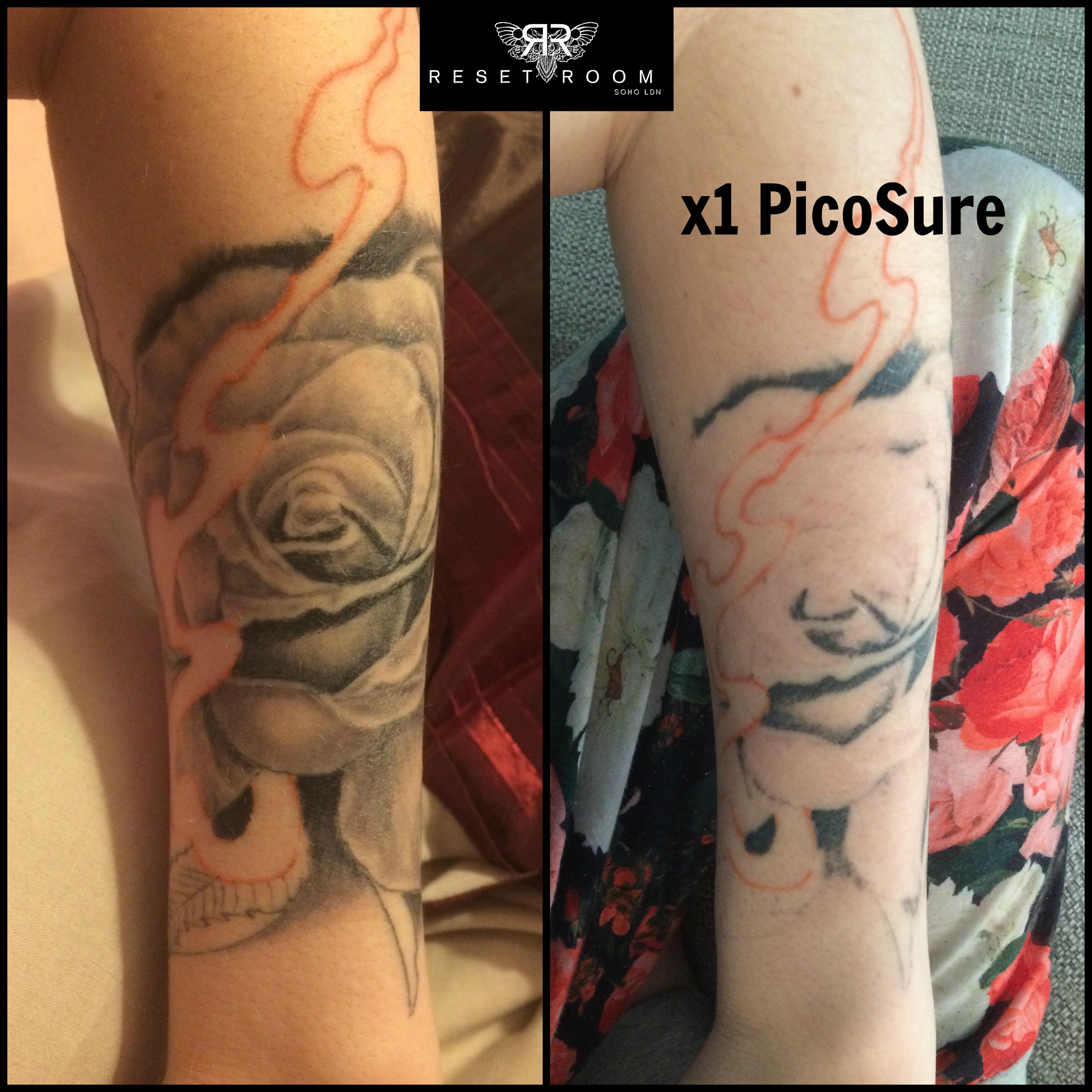 Change Is Not Regret Laser Tattoo Tattoo Removal Laser Tattoo Removal