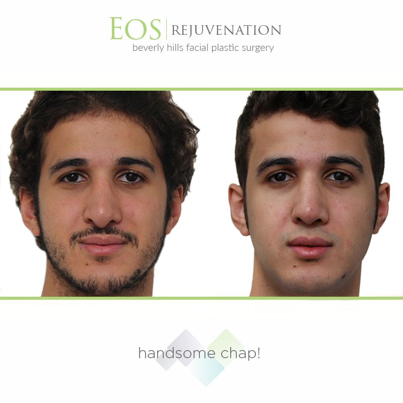 Procedure of the week: Revision Rhinoplasty                                       Cost:  $9,000 - $14,000. *Note: Some insurances help cover a portion of the procedure if the patient suffers from breathing problems.                                                               Products: Surgical Procedure                   Time: Varies, based on complexity                        Results: Improved facial symmetry and better breathing                                  Phone: 310-736-1680
