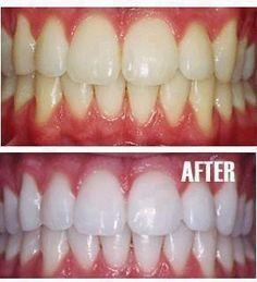 How To Get Snow White Teeth Health And Beauty Beauty Hacks