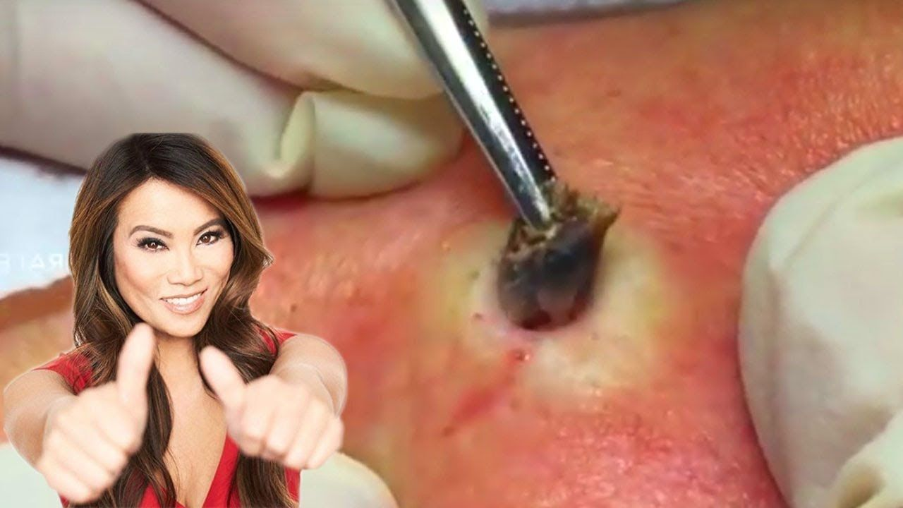 Ammco bus : Pimple popping videos youtube blackheads