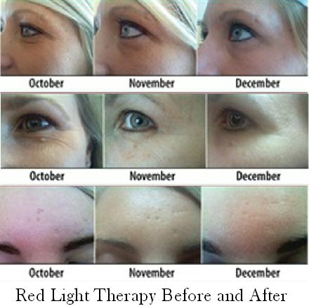 Red Yellow Light Therapy Seriously Fights Aging Red Light