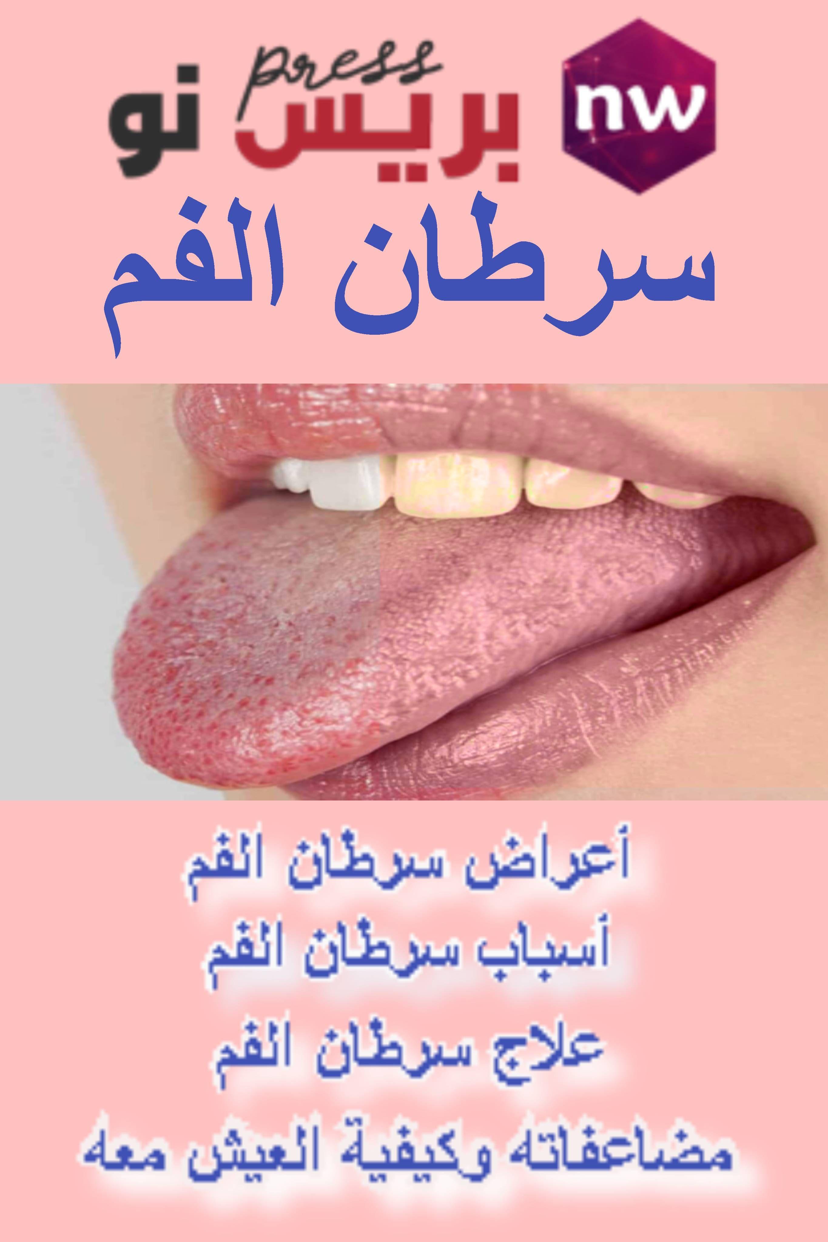 سرطان الفم الأعراض الأسباب مضاعفاته العلاج