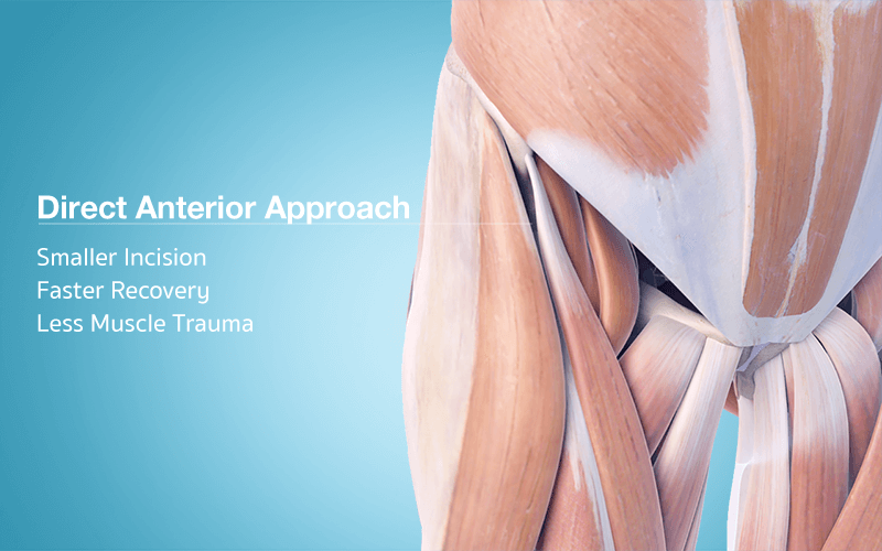 Traditional Hip Replacement Techniques Involve Operating From The Side Lateral Or The Back Posterior Of Th Hip Replacement Joint Replacement Osteoarthritis