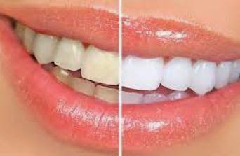 Tips Memutihkan Gigi Kuning Secara Alami Tips Dan Trik Pinterest
