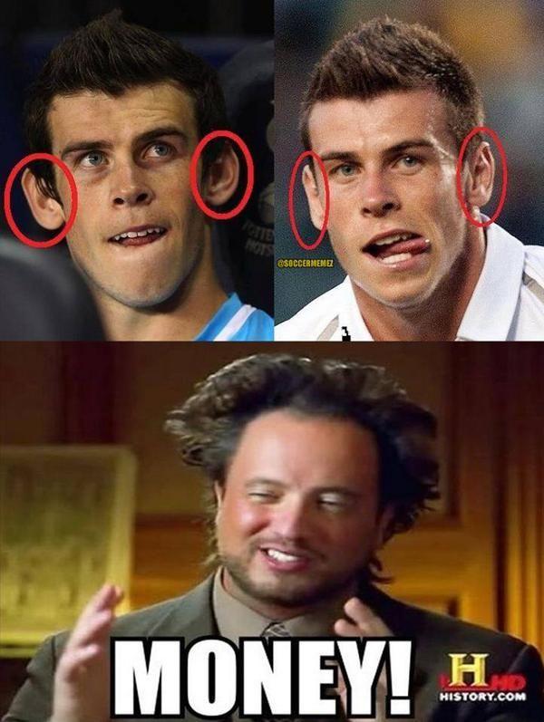 L'évolution des oreilles de Gareth Bale - http://www.actusports.fr/113918/levolution-oreilles-gareth-bale/