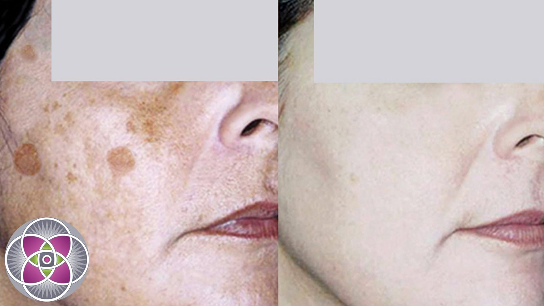 How to get rid of age spots 94