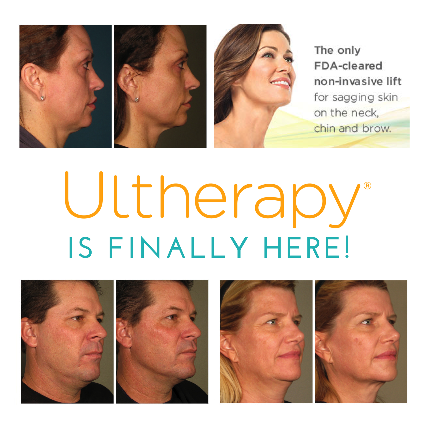 A Nonsurgical Way To Lift Tighten And Tone Skin Ultherapy Skin Bleaching Natural Skin Tightening