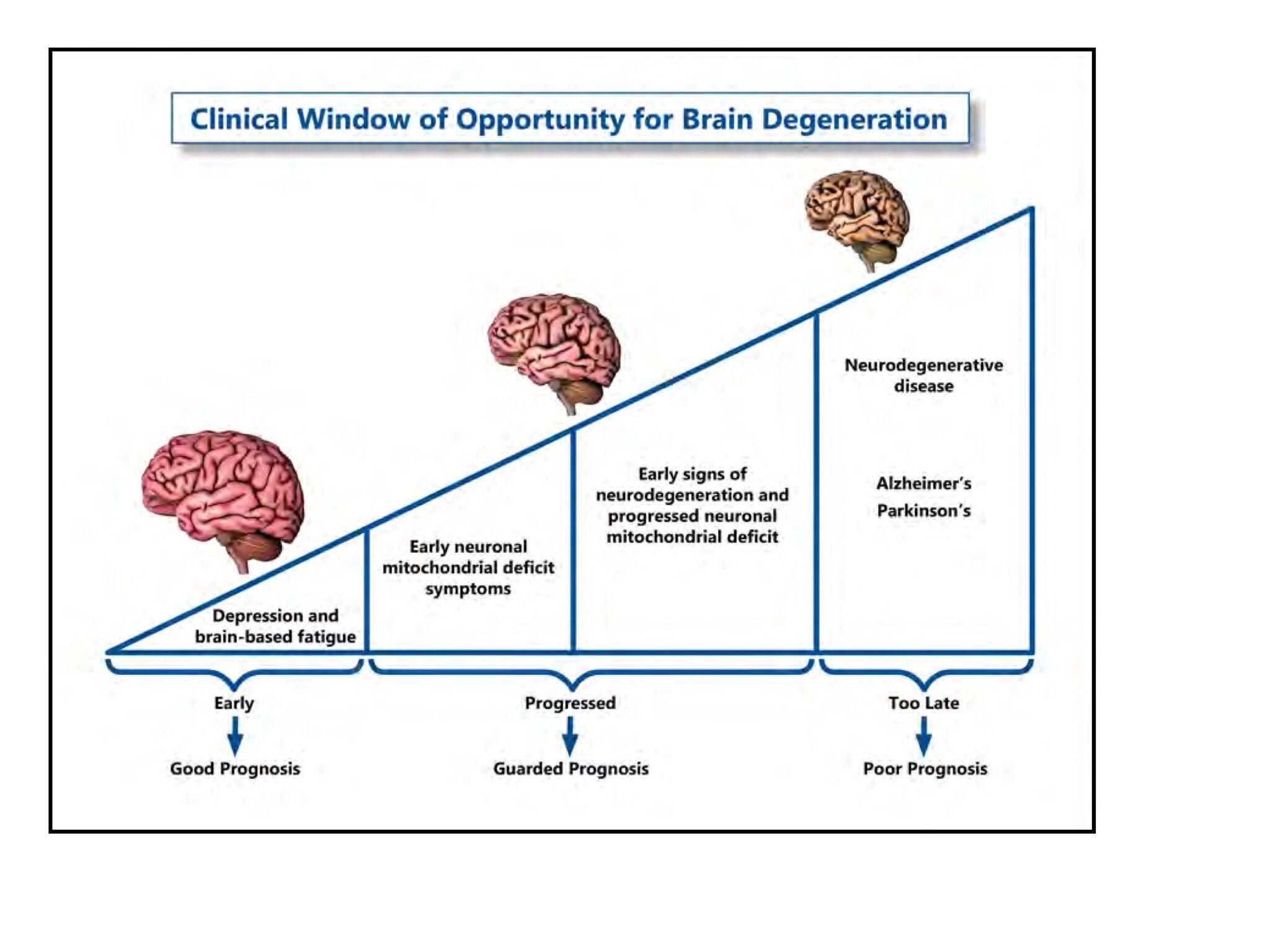 O inicio de uma doença neurodegenerativa pode iniciar com sintomas de depressão. www.estimulacaoneurologica.com.br