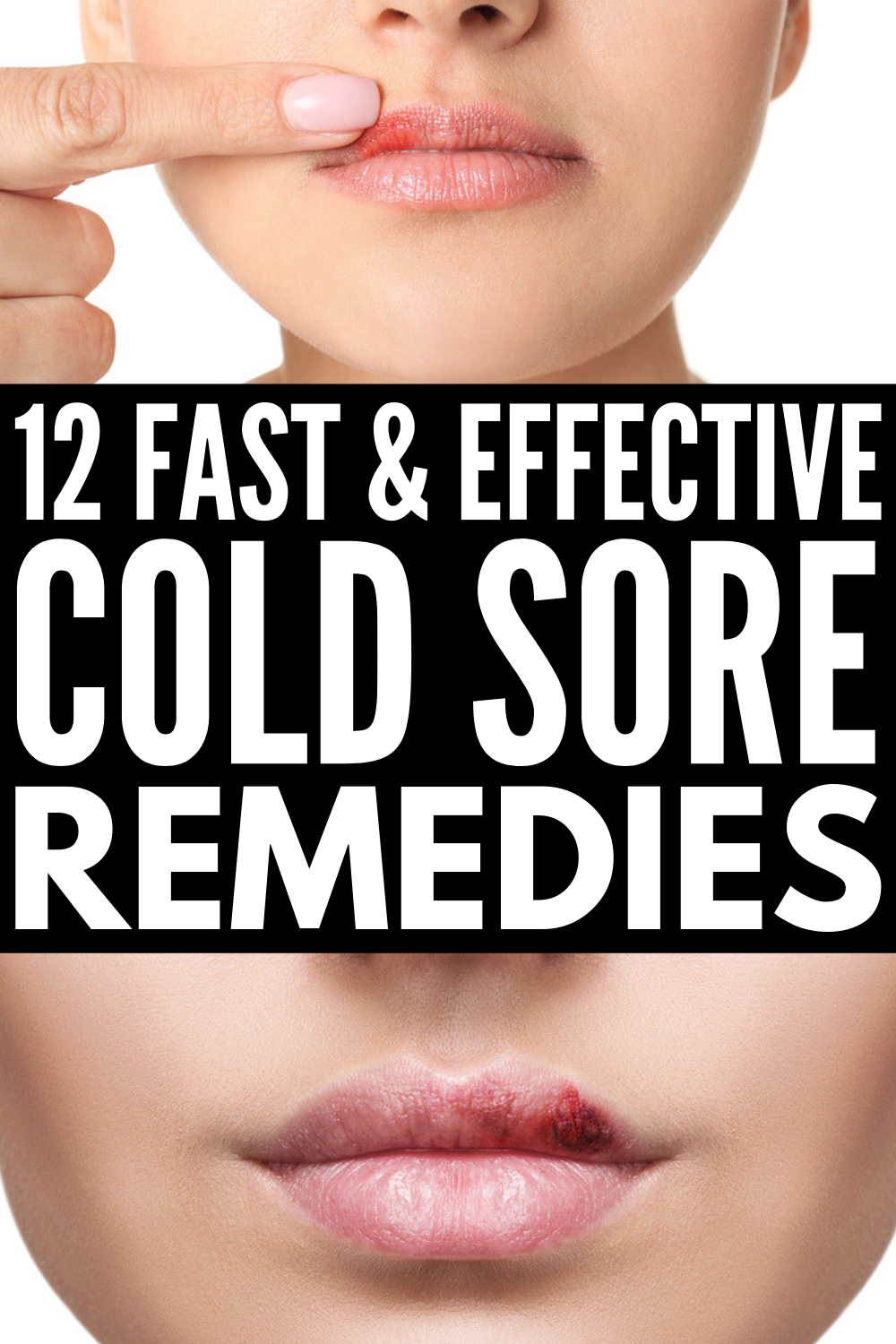 320c4e52b056bf0fe996cbf4c768c7ea - How To Get Swelling Down From A Cold Sore