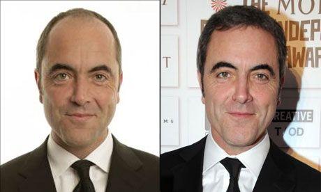 No More Mr Bald Guy Hair Transplants Celebrities Pinterest