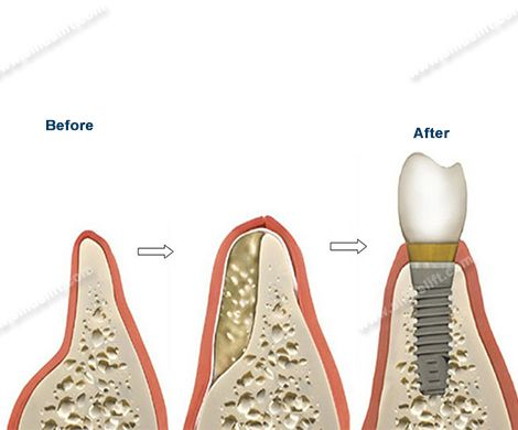 Bone grafts have also been used to restore bone contour ...