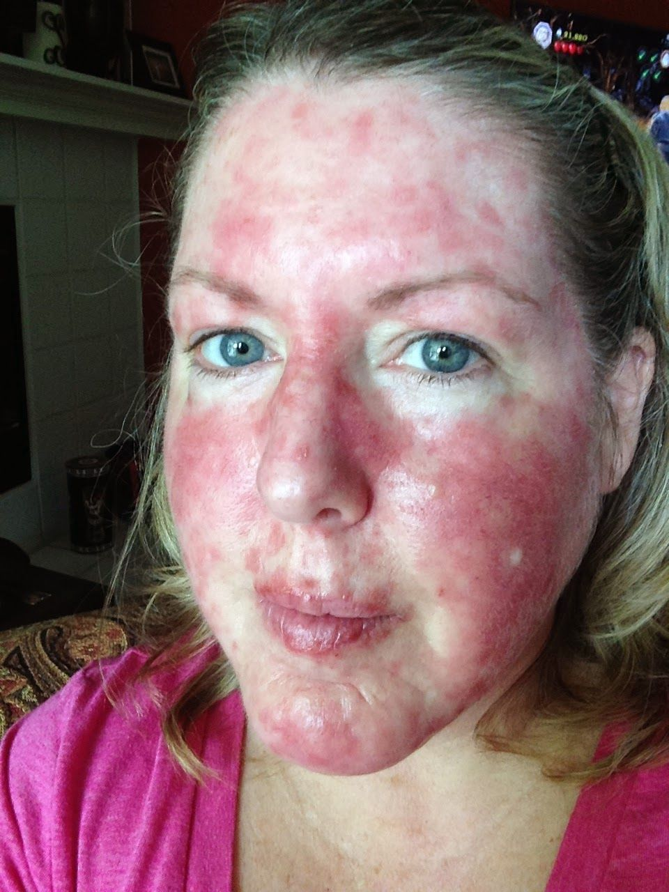 Jcf This Sunburn Was Me On A Good Day When It Started To Heal  I Had A Severe Reaction To The Cream My Dermatologist Said It Did The Job