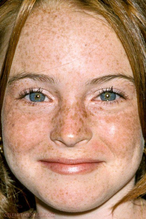 Freckle tit lindsay lohan