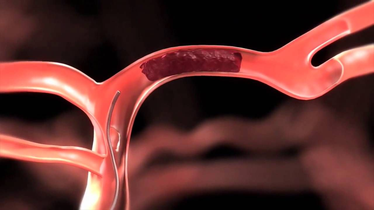 The Global Thrombectomy Devices Market Size Was Valued At Us 1 03 Billion In 2017 And Is Expected T Sales And Marketing Intervention Brain Aneurysm Awareness