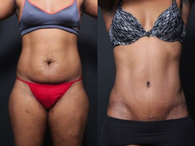 This Patient Had A Tummy Tuck 6 Months Ago When Designed