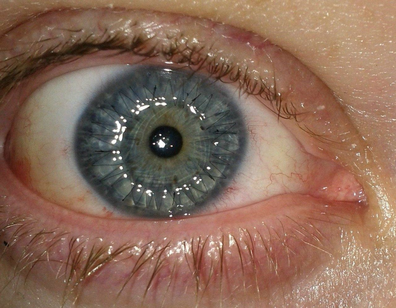 Corneal transplant with visible sutures Implants, Corneal