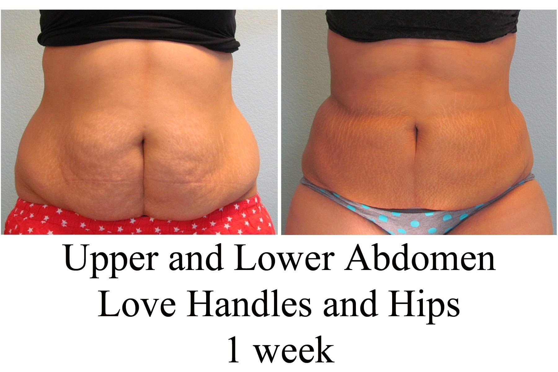 MyShape Lipo - Female Abdominal Liposuction, Employee Liposuction