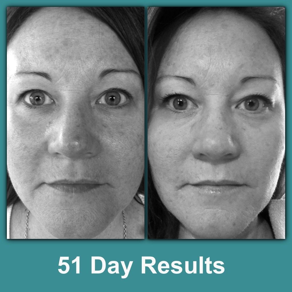 Entering 90 Day Real Results contest - free vaca here I come!