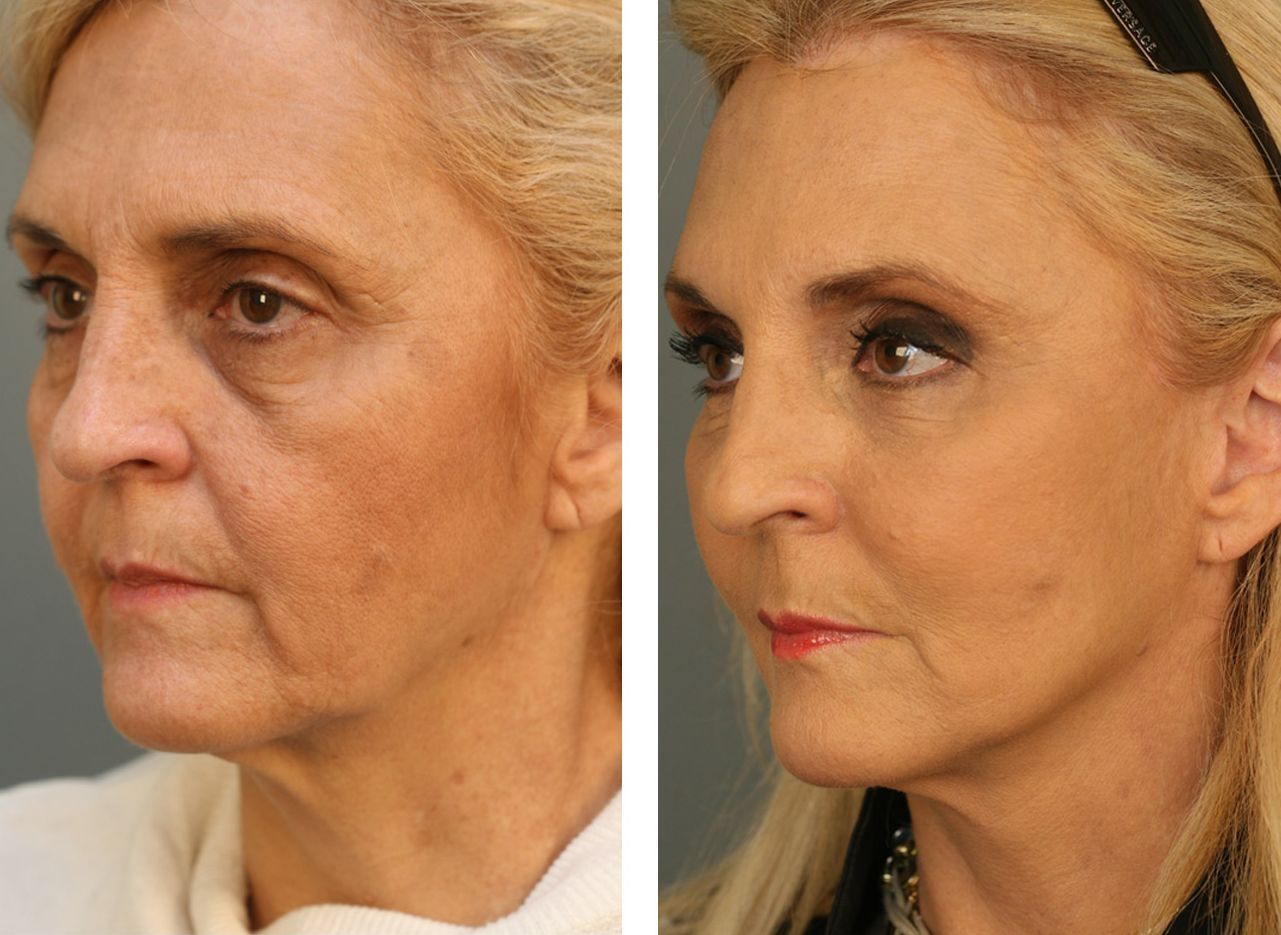 All Encompassing NonInvasive Facelift Use The Might Of Yoga Facial