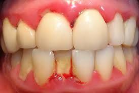 Si tienes molestias en tus encías y sangran, te aconsejemos que no deje pasar más tiempo para visitar un odontólogo, por lo general las enfermedades de la boca son de naturaleza crónica y dañan nuestros tejidos. #CuidoMisDientes