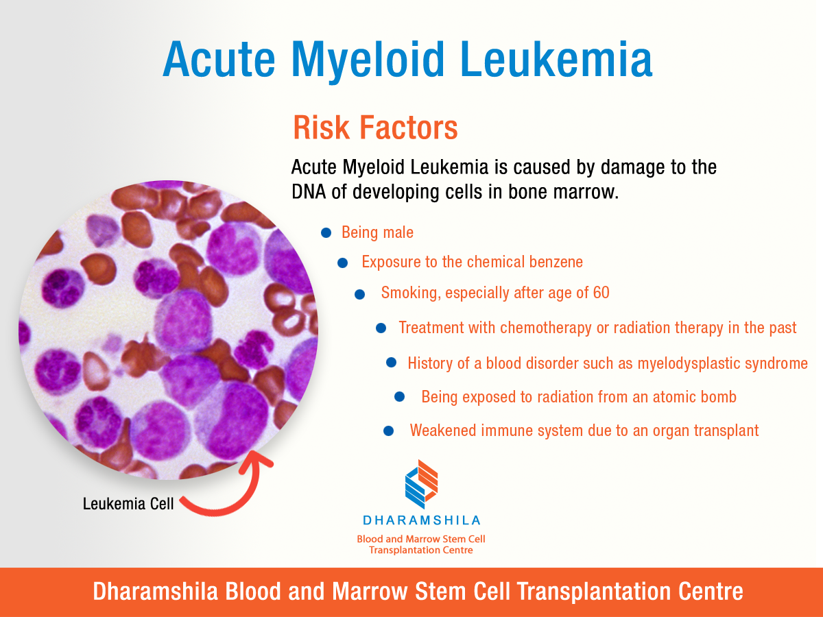 Acute Myeloid Leukemia : Risk Factors Acute Myeloid ...