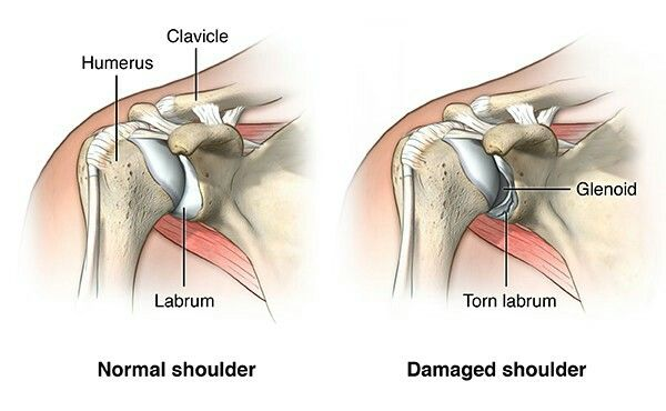 Pin By Great Wolf On Shoulder Dislocation With Images