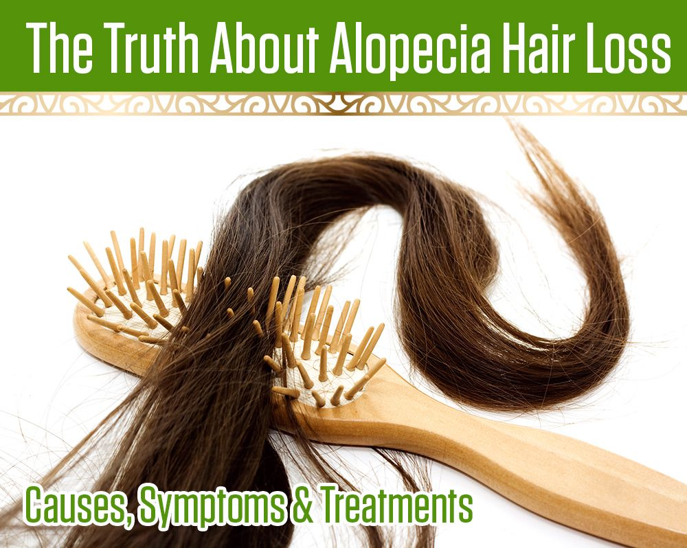 Find Out The Truth About Alopecia Hair Loss Causes Symptoms Treatments And Start Fighting Back Against This Ins Hair Loss Causes Natural Hair Loss Hair Loss